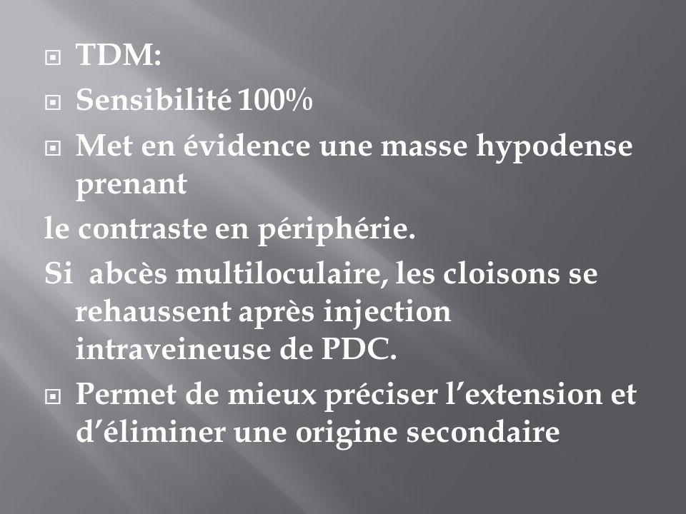 TDM: Sensibilité 100% Met en évidence une masse hypodense prenant. le contraste en périphérie.