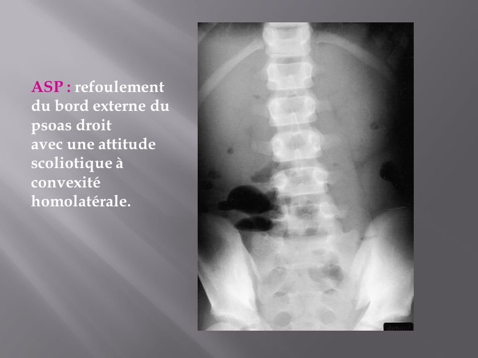 ASP : refoulement du bord externe du psoas droit