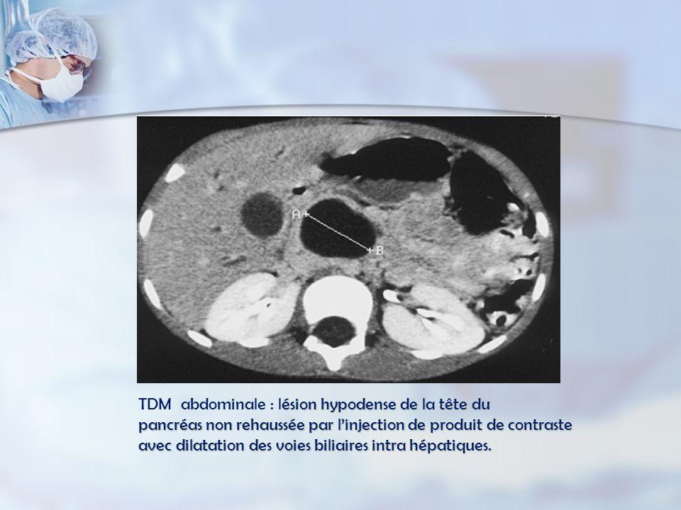 TDM abdominale : lésion hypodense de la tête du pancréas non rehaussée par l'injection de produit de contraste avec dilatation des voies biliaires intra hépatiques.