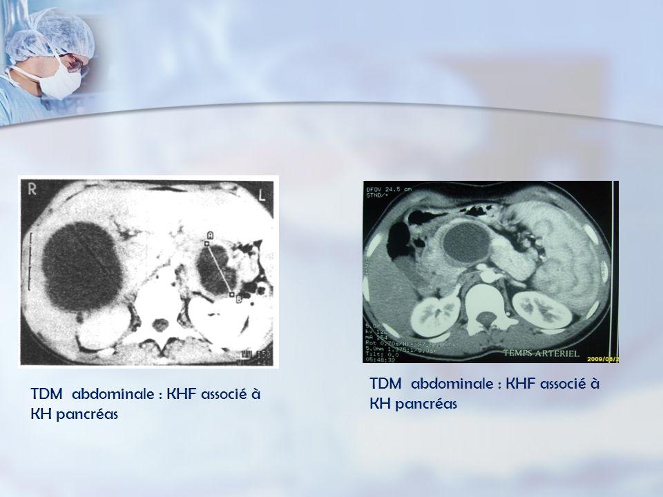 TDM abdominale : KHF associé à KH pancréas