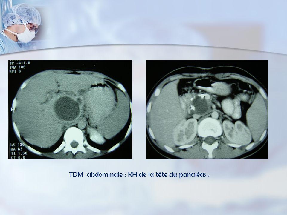 TDM abdominale : KH de la tête du pancréas .