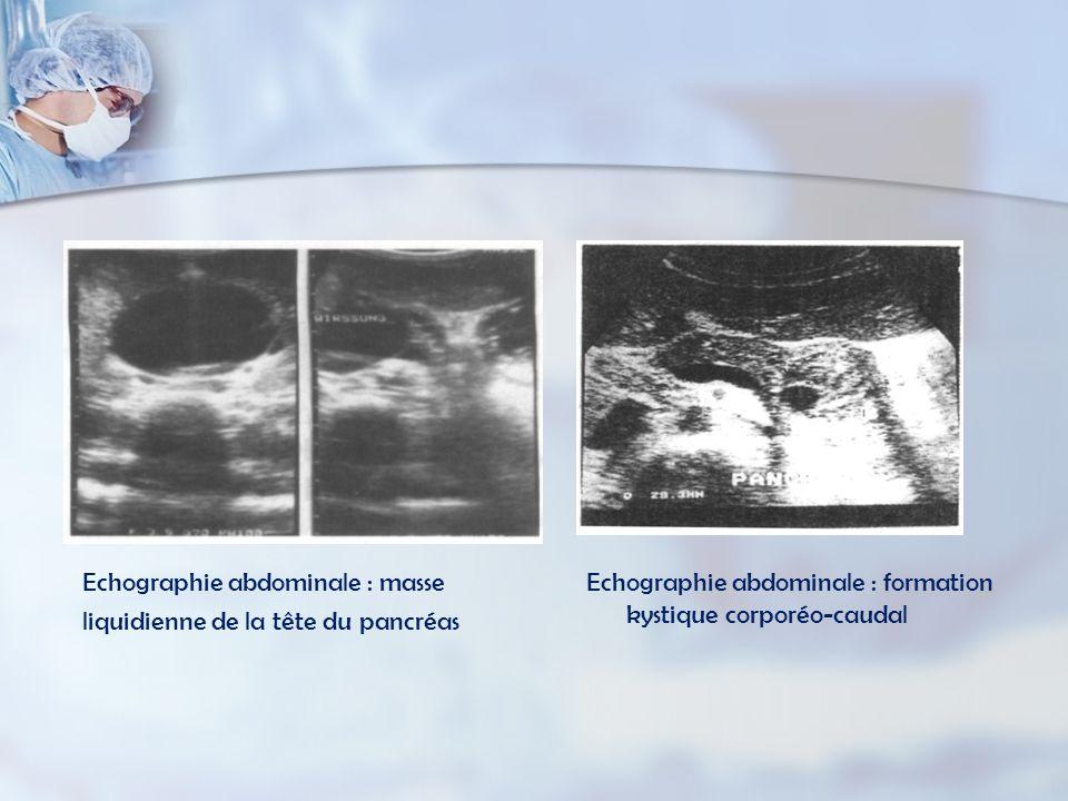 Echographie abdominale : masse