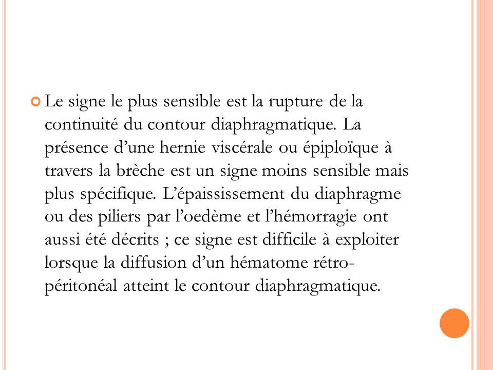Le signe le plus sensible est la rupture de la continuité du contour diaphragmatique.