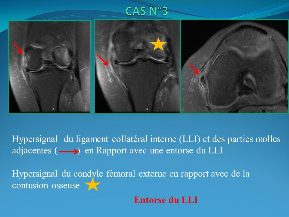 CAS N°3 Hypersignal du ligament collatéral interne (LLI) et des parties molles adjacentes ( ) en Rapport avec une entorse du LLI.
