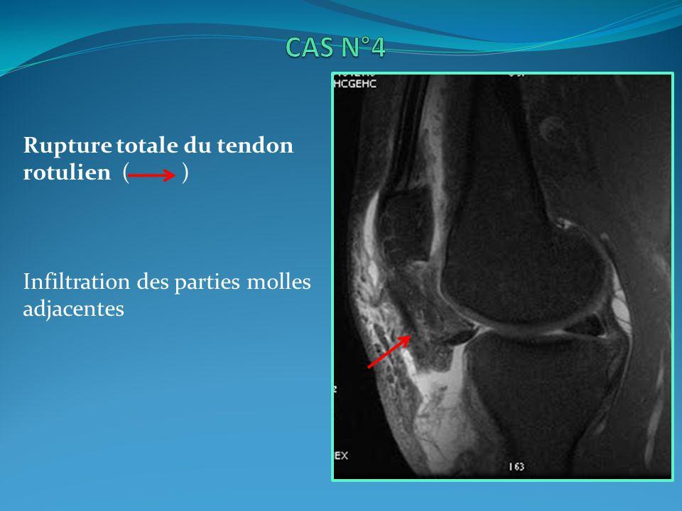 CAS N°4 Rupture totale du tendon rotulien ( )