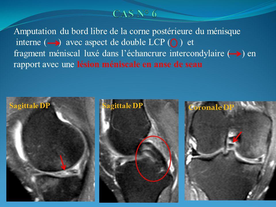 CAS N° 6 Amputation du bord libre de la corne postérieure du ménisque