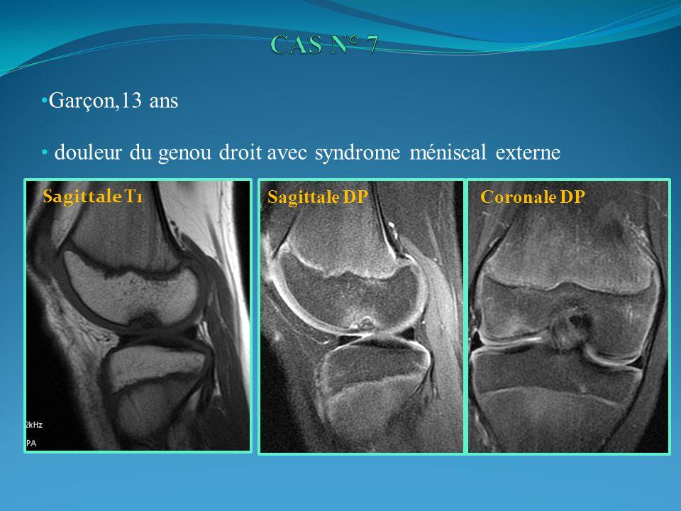 CAS N° 7 Garçon,13 ans. douleur du genou droit avec syndrome méniscal externe. Sagittale T1. Sagittale DP.