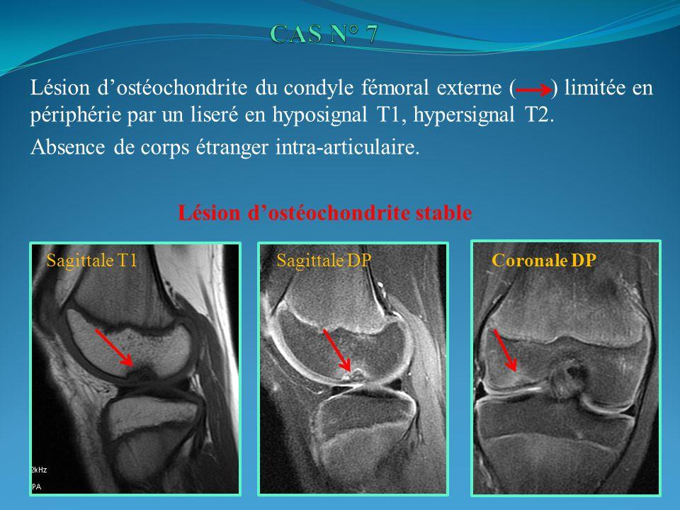 CAS N° 7 Lésion d'ostéochondrite du condyle fémoral externe ( ) limitée en périphérie par un liseré en hyposignal T1, hypersignal T2.