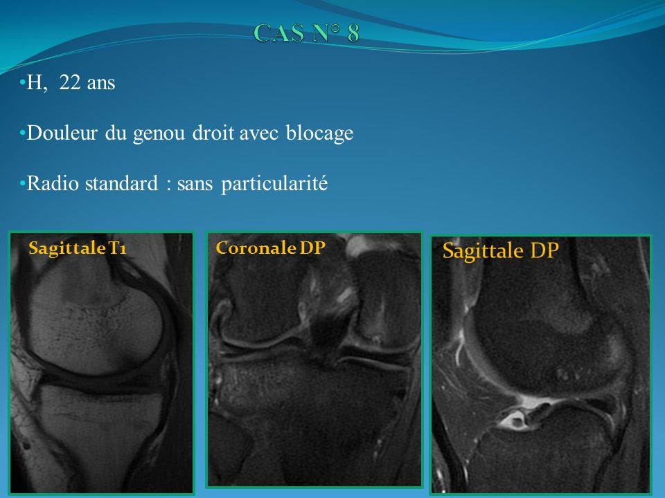 CAS N° 8 H, 22 ans Douleur du genou droit avec blocage