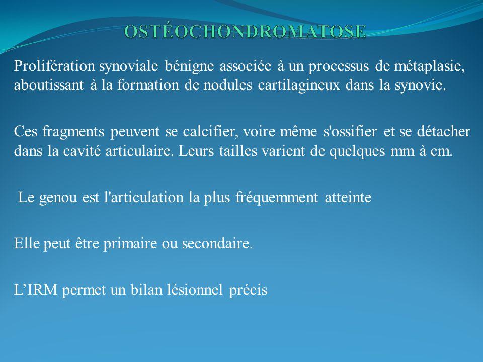 OSTÉOCHONDROMATOSE