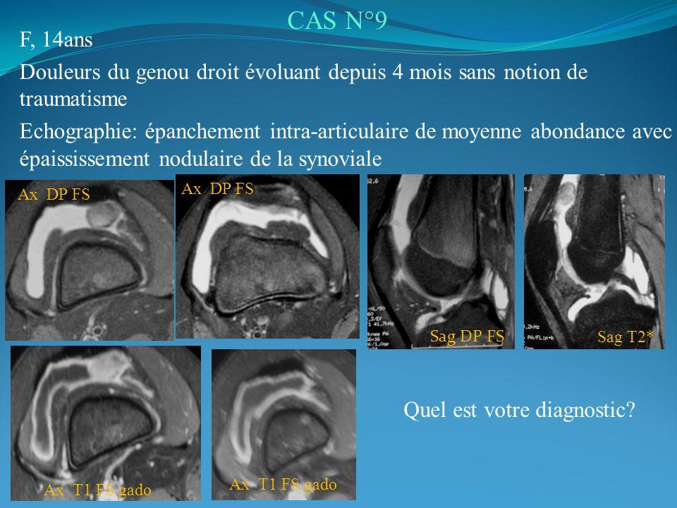 CAS N°9 F, 14ans. Douleurs du genou droit évoluant depuis 4 mois sans notion de traumatisme.