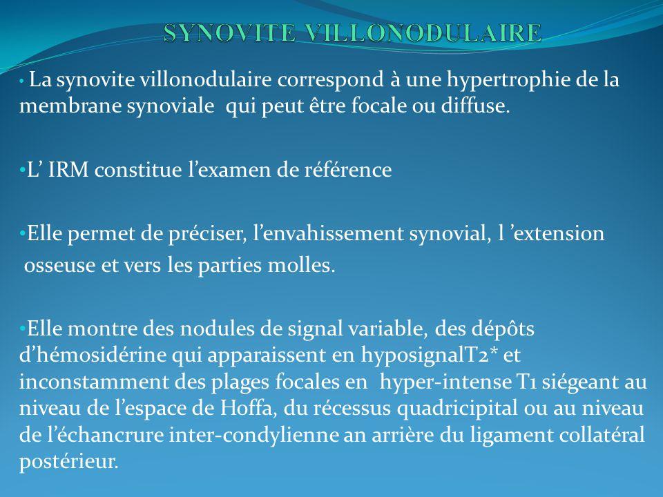 SYNOVITE VILLONODULAIRE
