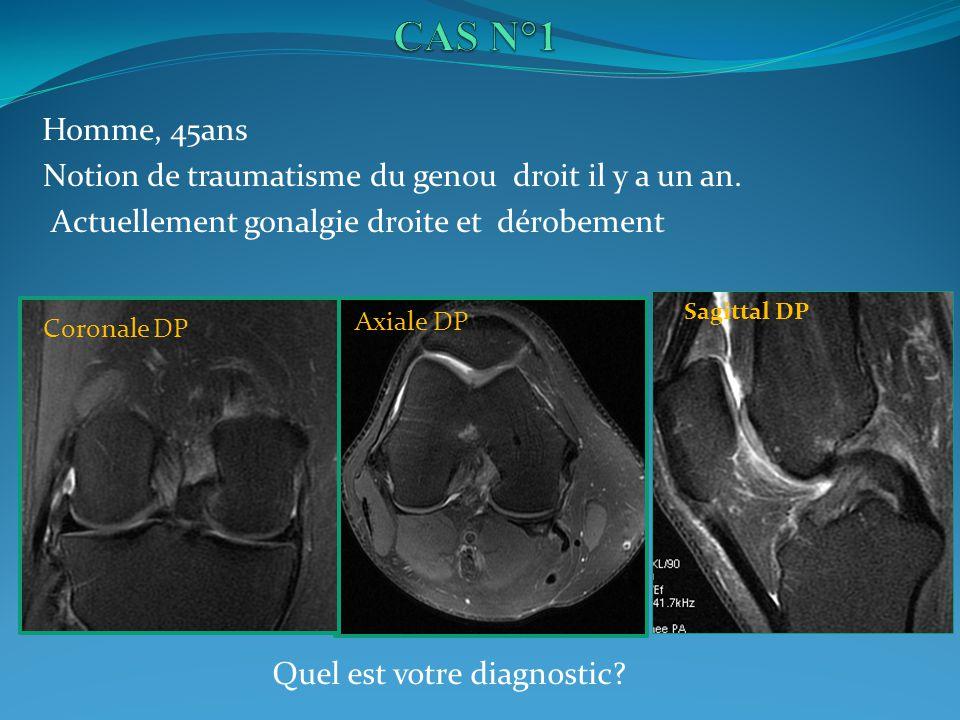CAS N°1 Notion de traumatisme du genou droit il y a un an.
