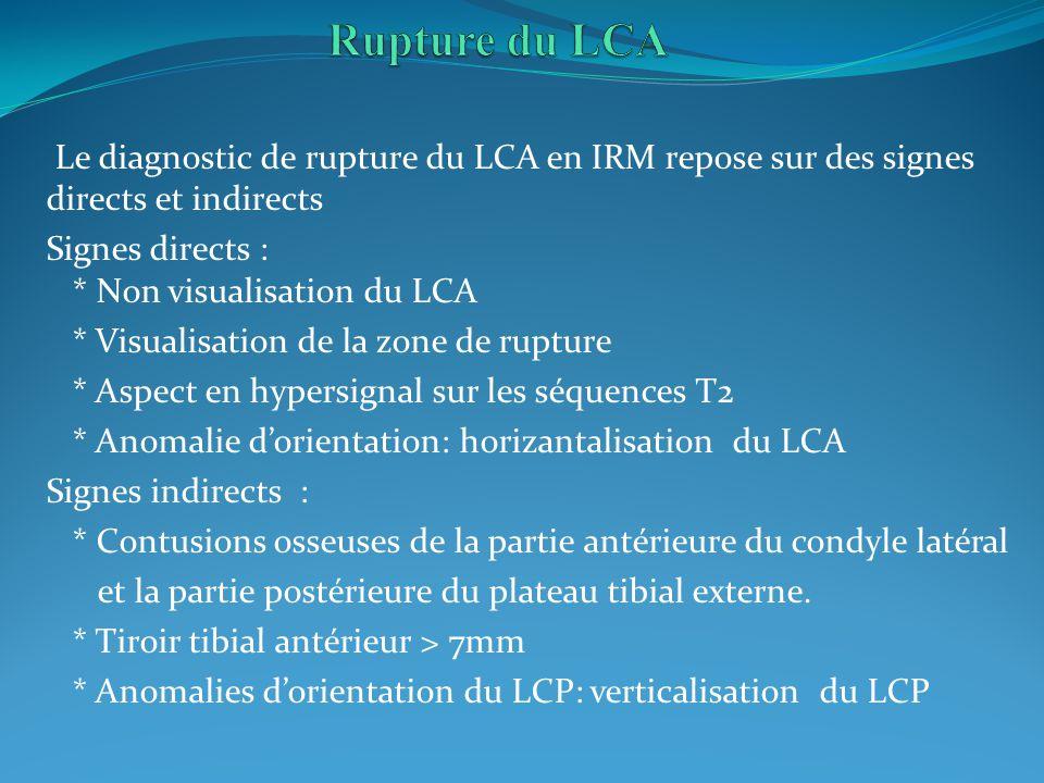 Rupture du LCA Le diagnostic de rupture du LCA en IRM repose sur des signes directs et indirects. Signes directs : * Non visualisation du LCA.