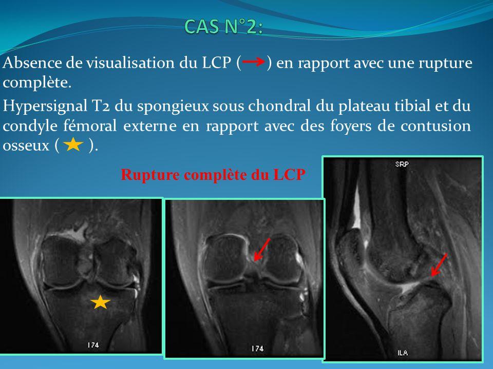 CAS N°2: Absence de visualisation du LCP ( ) en rapport avec une rupture complète.
