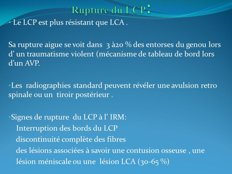 Rupture du LCP: Le LCP est plus résistant que LCA .