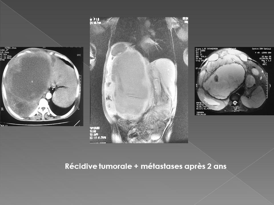 Récidive tumorale + métastases après 2 ans