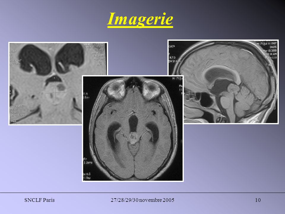 Imagerie SNCLF Paris 27/28/29/30 novembre 2005