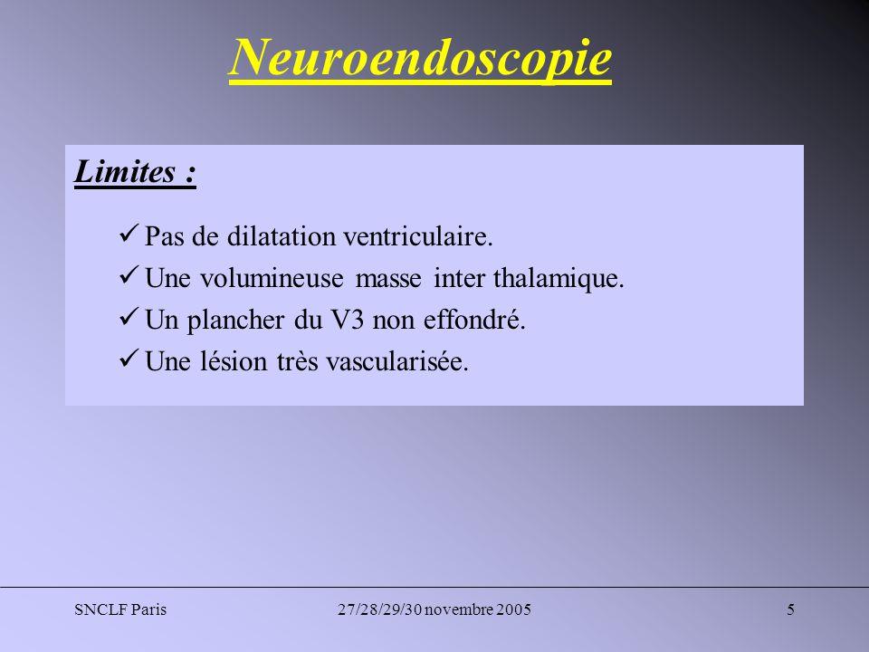 Neuroendoscopie Limites : Pas de dilatation ventriculaire.