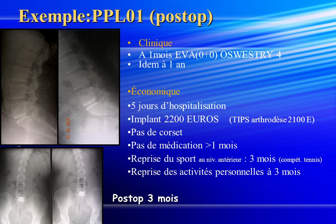 Exemple:PPL01 (postop) Clinique A 1mois EVA(0+0) OSWESTRY 4