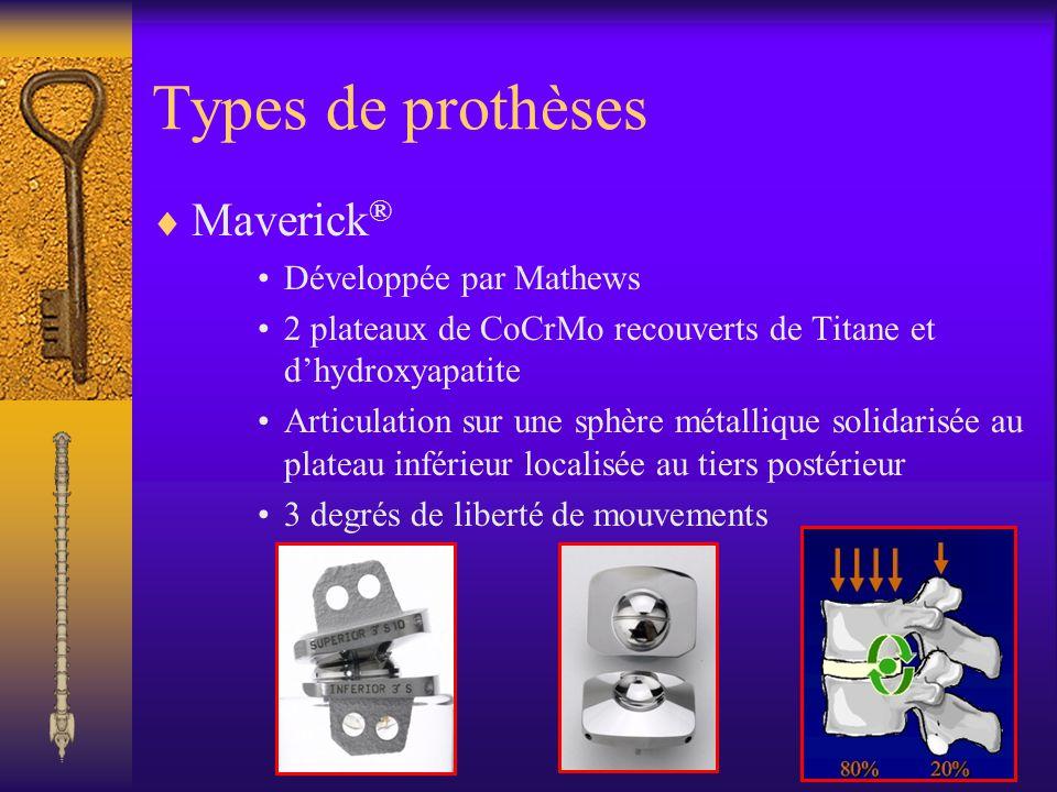 Types de prothèses Maverick® Développée par Mathews
