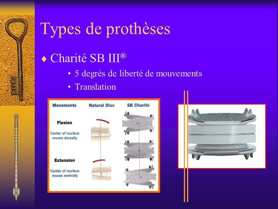 Types de prothèses Charité SB III® 5 degrés de liberté de mouvements