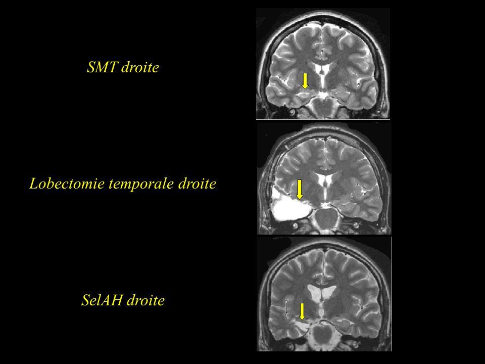Lobectomie temporale droite