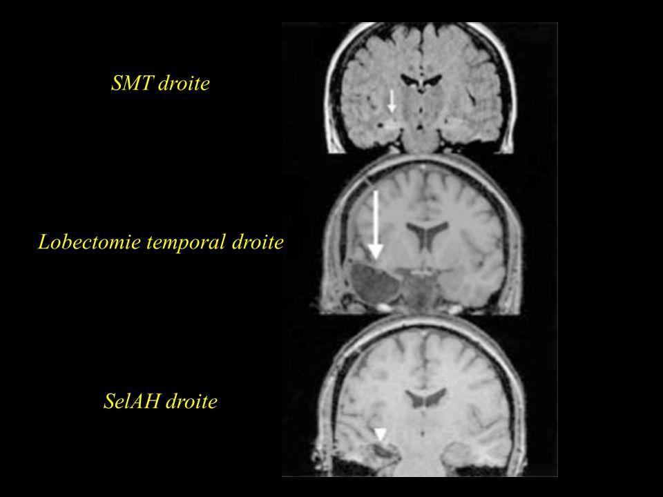 Lobectomie temporal droite