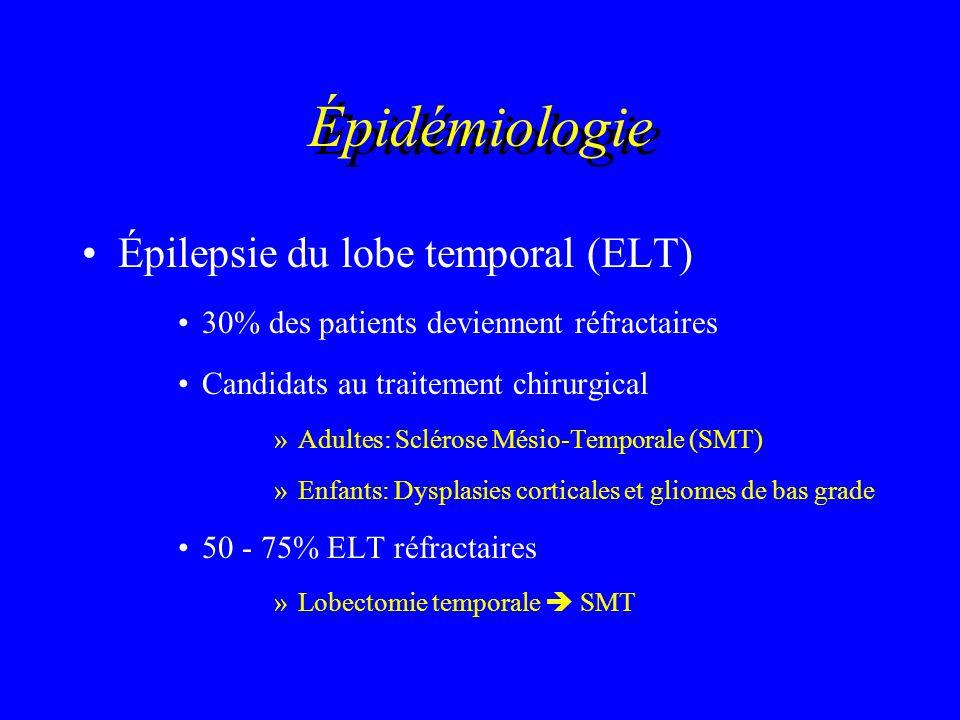 Épidémiologie Épilepsie du lobe temporal (ELT)