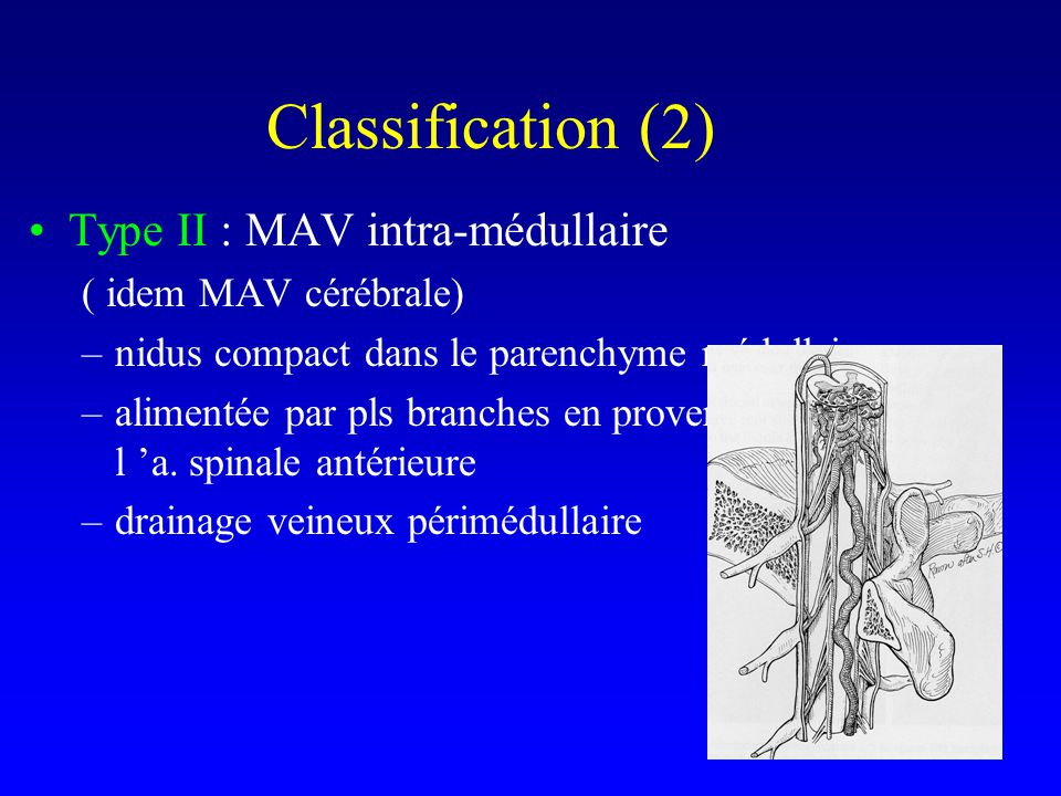 Classification (2) Type II : MAV intra-médullaire