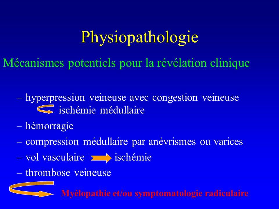 Physiopathologie Mécanismes potentiels pour la révélation clinique