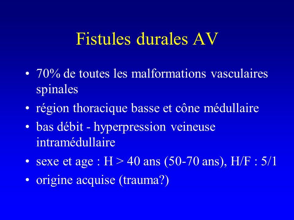 Fistules durales AV 70% de toutes les malformations vasculaires spinales. région thoracique basse et cône médullaire.