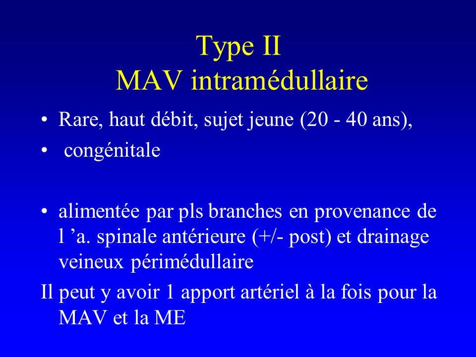 Type II MAV intramédullaire