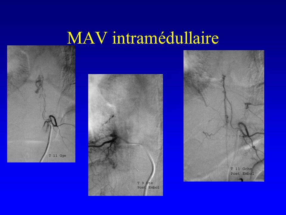 MAV intramédullaire