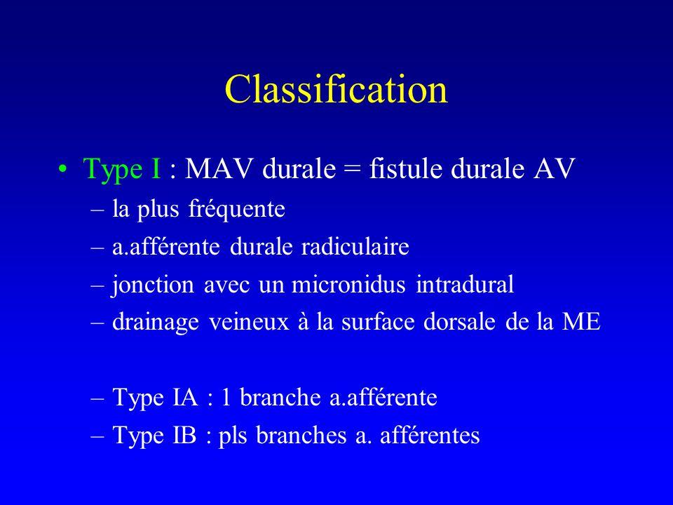Classification Type I : MAV durale = fistule durale AV
