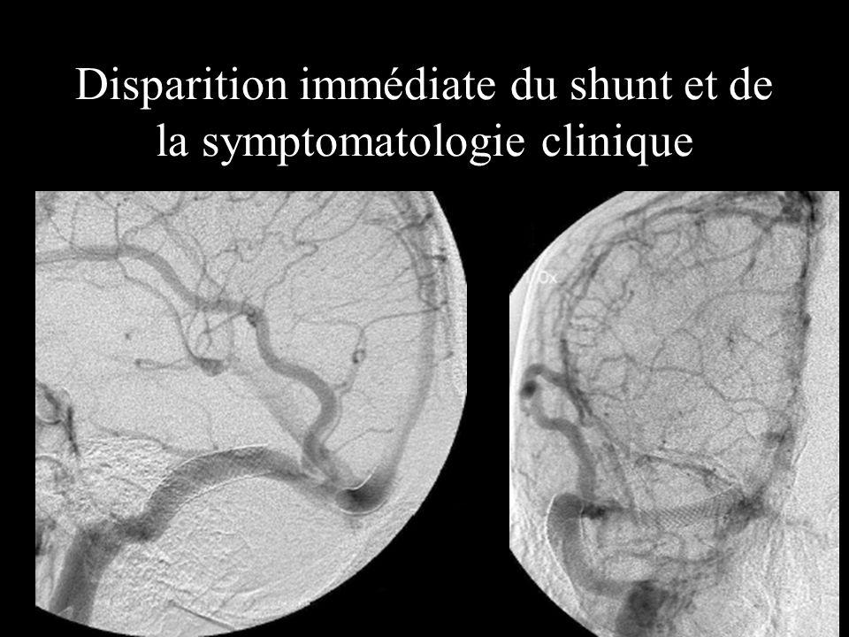 Disparition immédiate du shunt et de la symptomatologie clinique