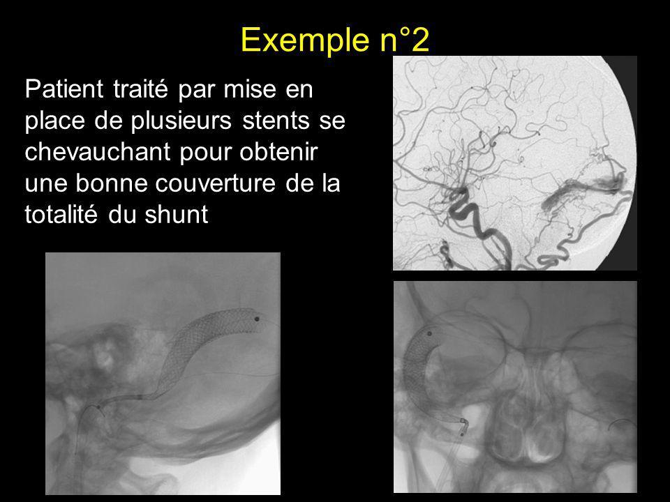 Exemple n°2 Patient traité par mise en place de plusieurs stents se chevauchant pour obtenir une bonne couverture de la totalité du shunt.