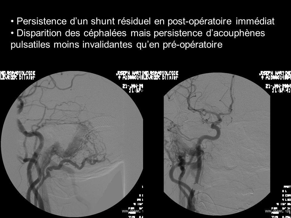 Persistence d'un shunt résiduel en post-opératoire immédiat