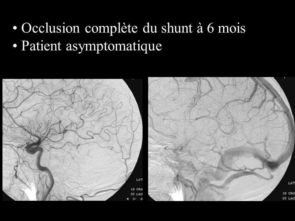 Occlusion complète du shunt à 6 mois