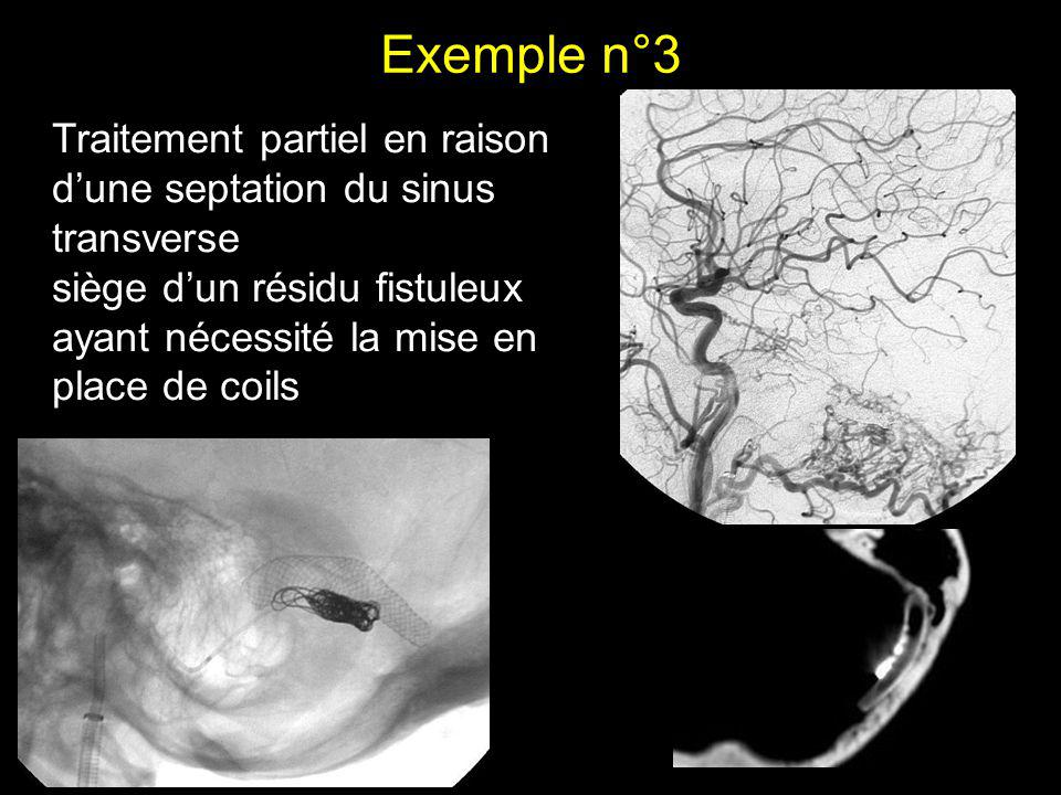 Exemple n°3 Traitement partiel en raison d'une septation du sinus transverse.