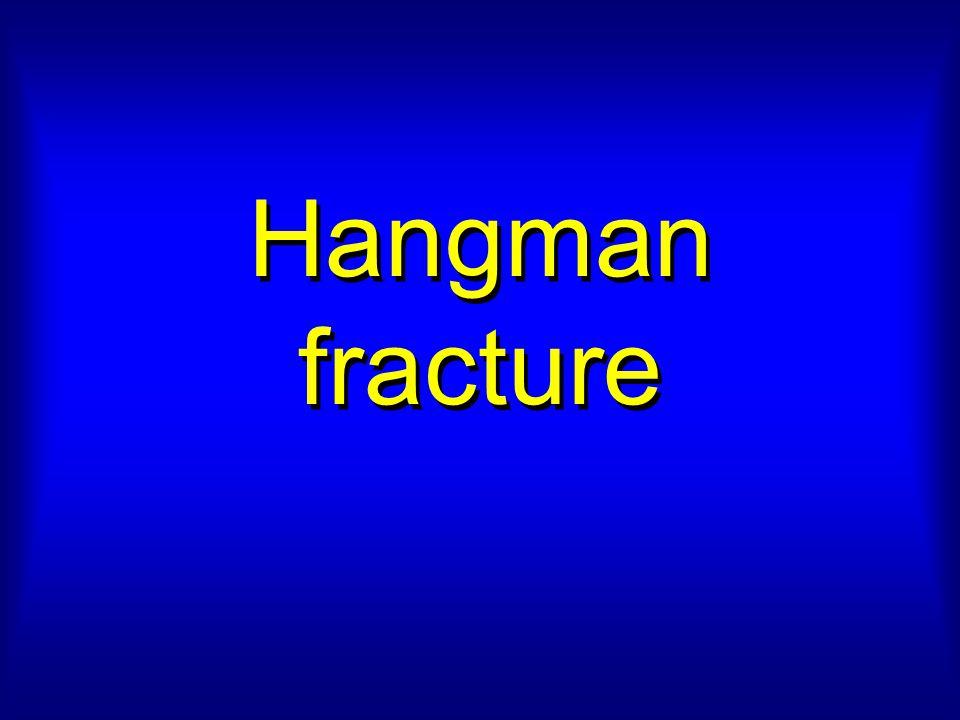 Hangman fracture