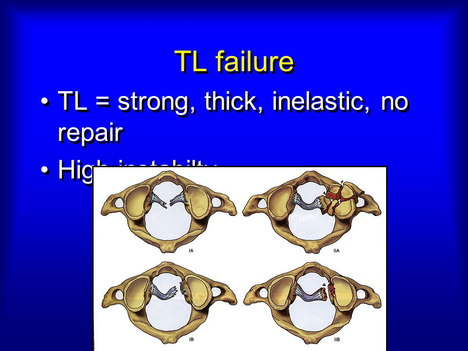 TL failure TL = strong, thick, inelastic, no repair High instabilty