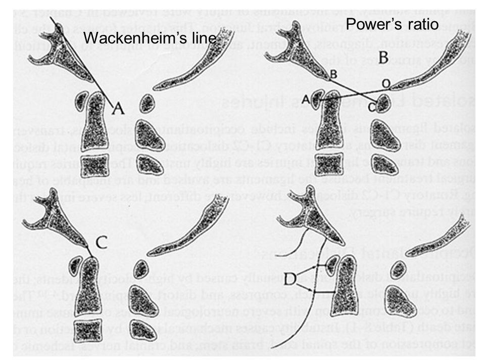 Power's ratio Wackenheim's line
