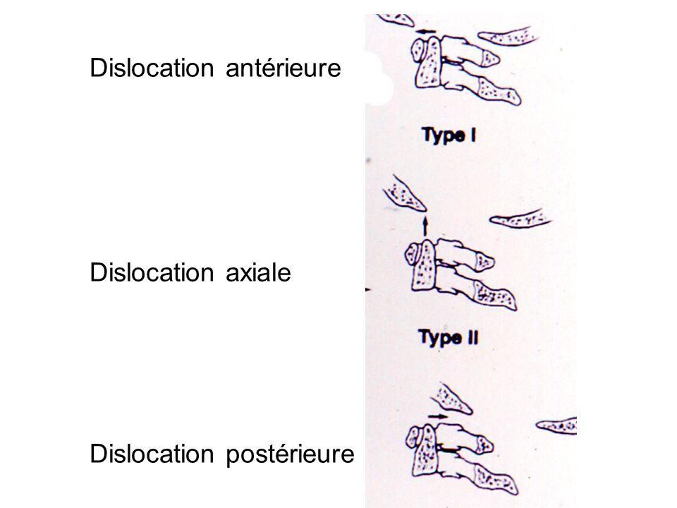 Dislocation antérieure