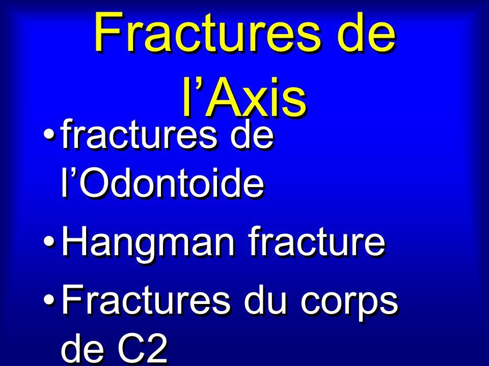 Fractures de l'Axis fractures de l'Odontoide Hangman fracture