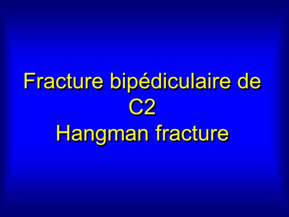 Fracture bipédiculaire de C2 Hangman fracture