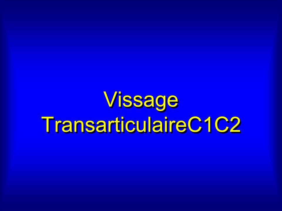 Vissage TransarticulaireC1C2