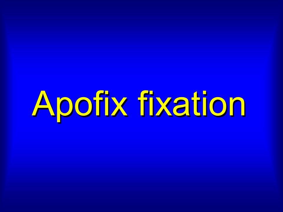 Apofix fixation