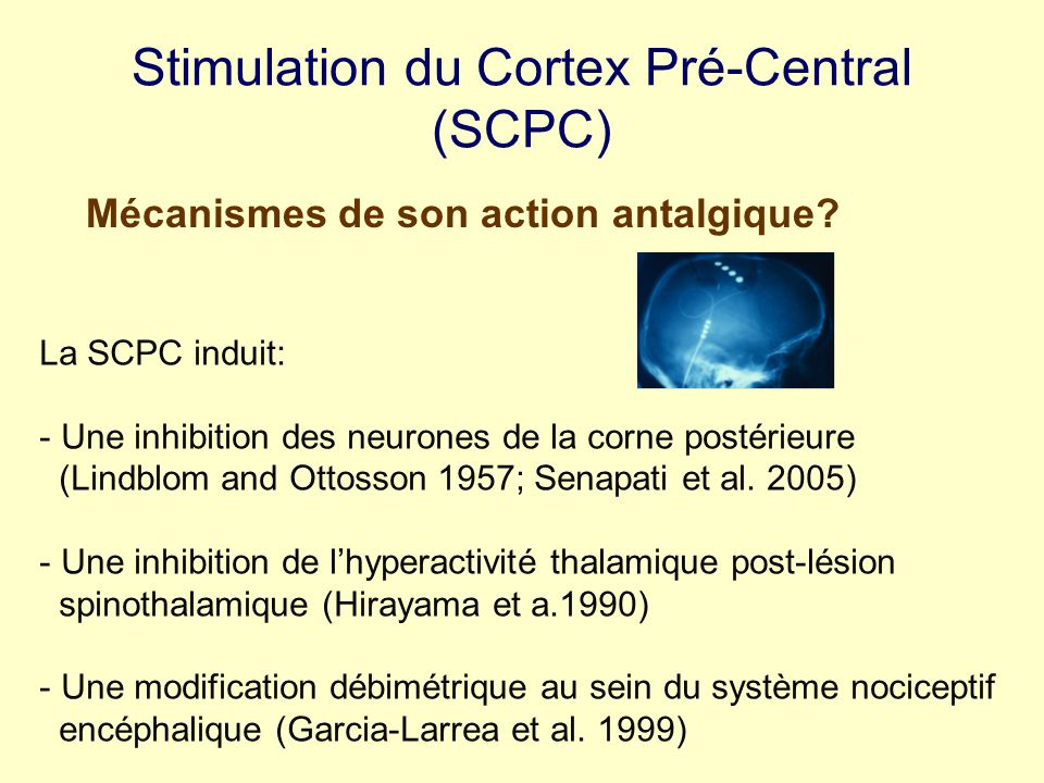 Stimulation du Cortex Pré-Central (SCPC)