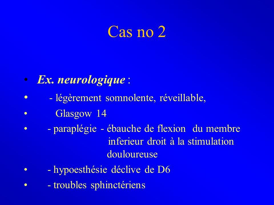 Cas no 2 Ex. neurologique : - légèrement somnolente, réveillable,